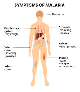 Symptoms-Of-Malaria