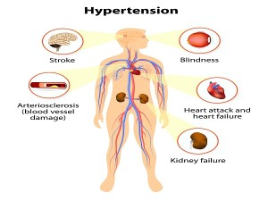 Damage From High Blood Pressure