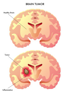 medical illustration of the effects of the brain tumor
