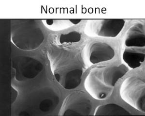 normal-bone